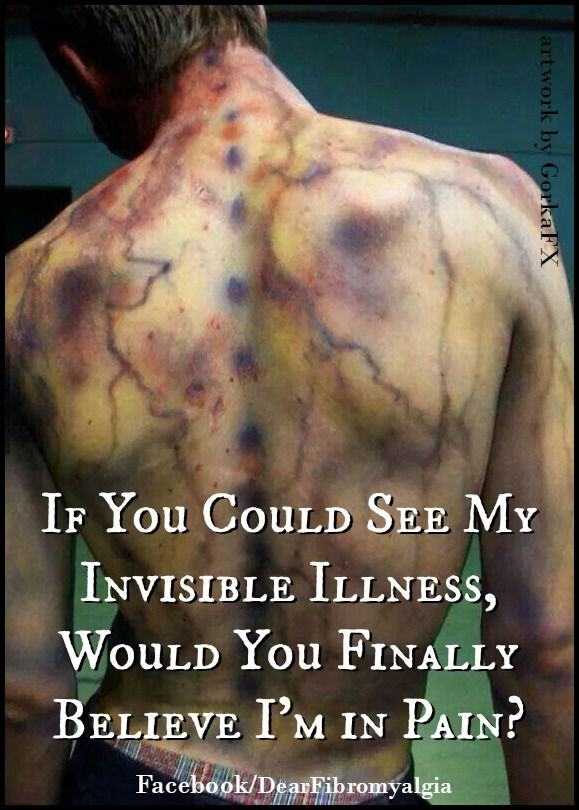 da93389b28dc4d835b2a537e0db95772--chronic-pain-quotes-fibromyalgia-quotes